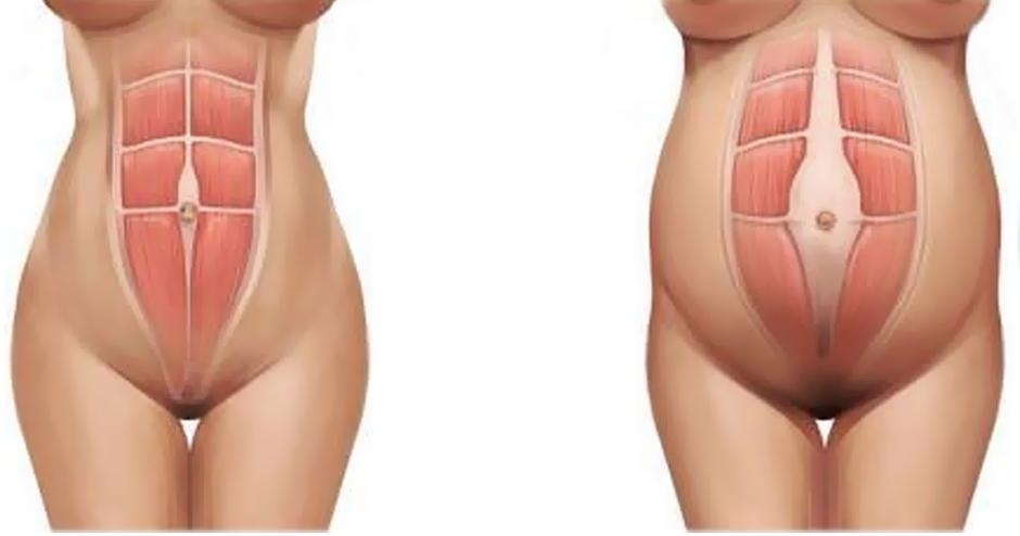 rozestup (diastáza) břišních svalů